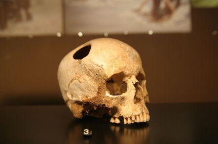 trepanation-ancient-highly-risky-head-trauma-treatment-involving-drilling-scraping-hole